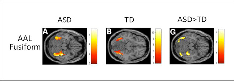 Composite of brain scans showing differences in response of the fusiform brain area when participants with autism (A) and typically developing participants (B) viewed images of their interests; (G) shows areas of greater response in participants with autism compared to typically developing participants. Photo courtesy Cascio lab.
