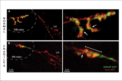 Images showing individual memory synapses in normal and Fragile X fly brains.