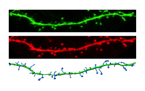 Pictured: Dendrite from a neuron expressing wild type CaMKII.