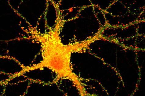 Yellow neuron